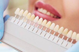 Matching porcelain to teeth for dental implants