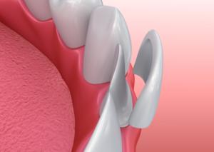 Dental model of porcelain veneers in Palm Bay.